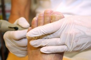 toe nail infections